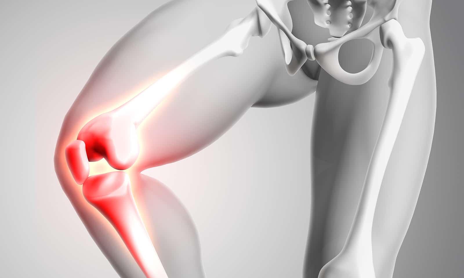 Productos naturales para fortalecer los huesos
